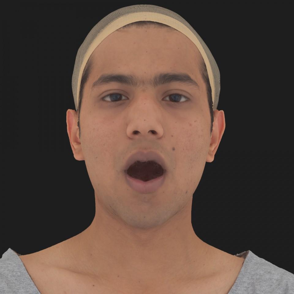 Anil Ansari 05 Jaw Open