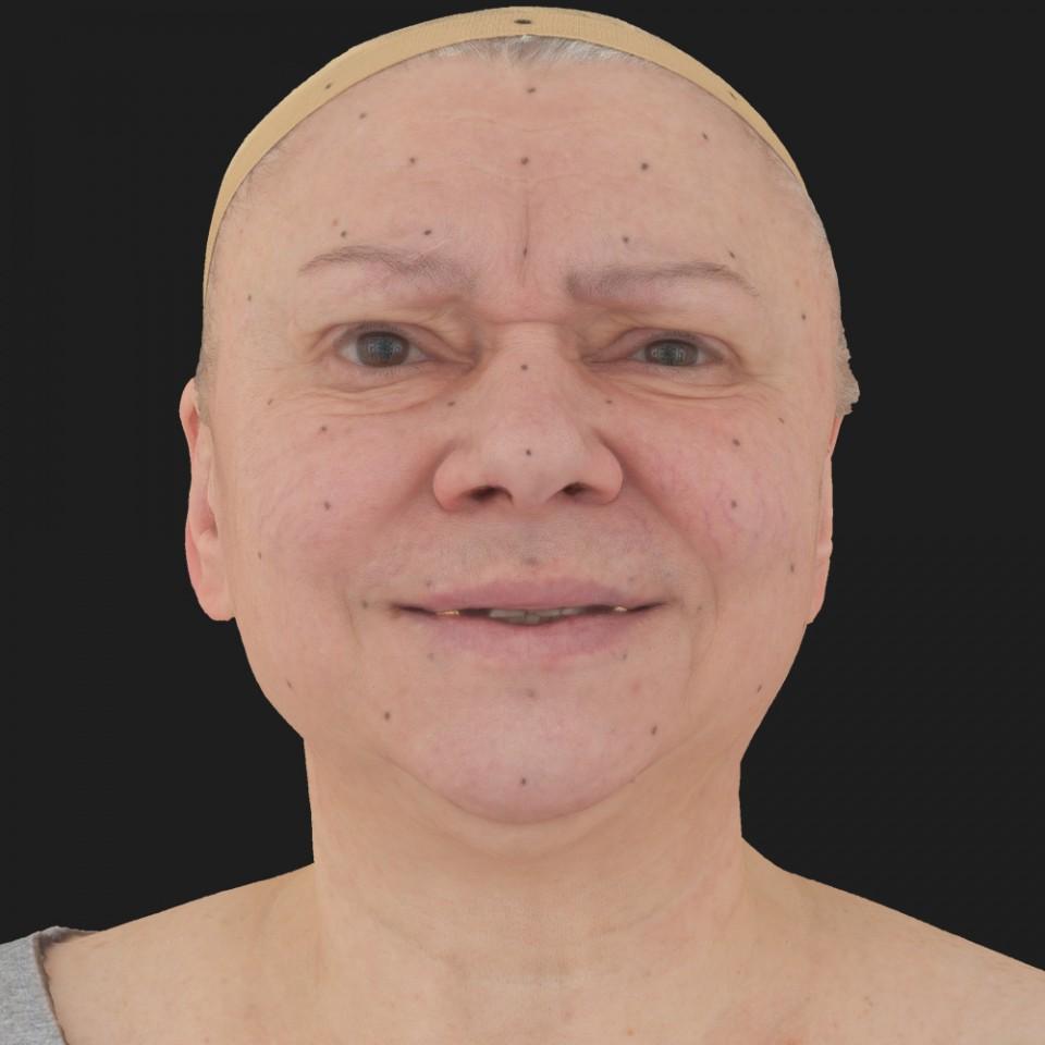 Doris Alexander 18 Pain