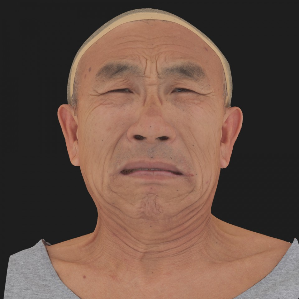 Joseph Fujikawa 18 Pain
