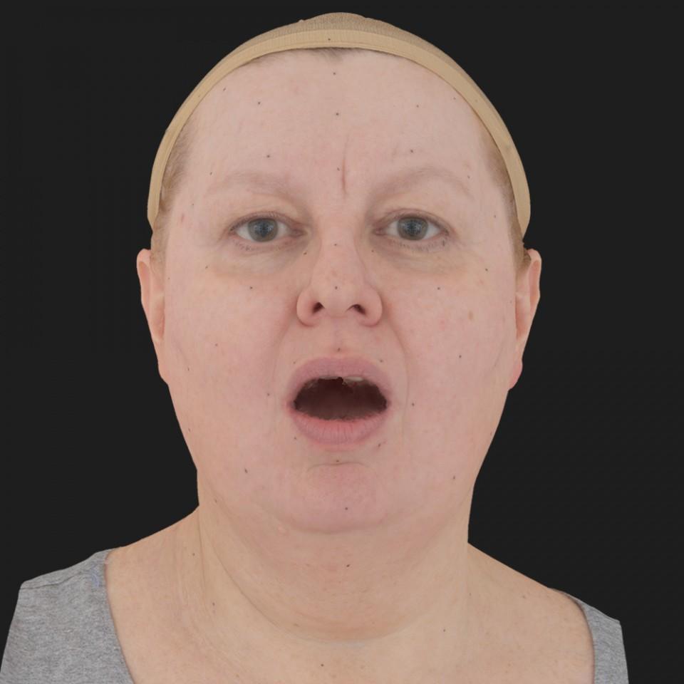 Lesley Corlett 05 Jaw Open