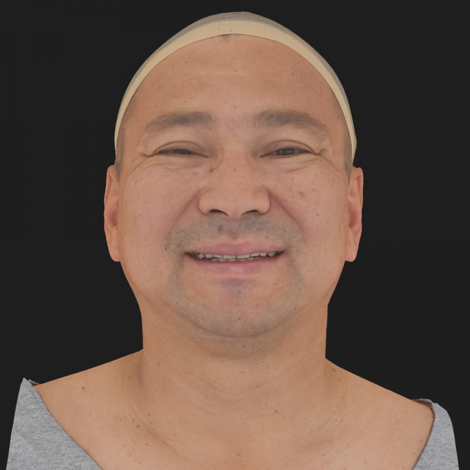 Mark Yun 04 Smile-Mouth Open