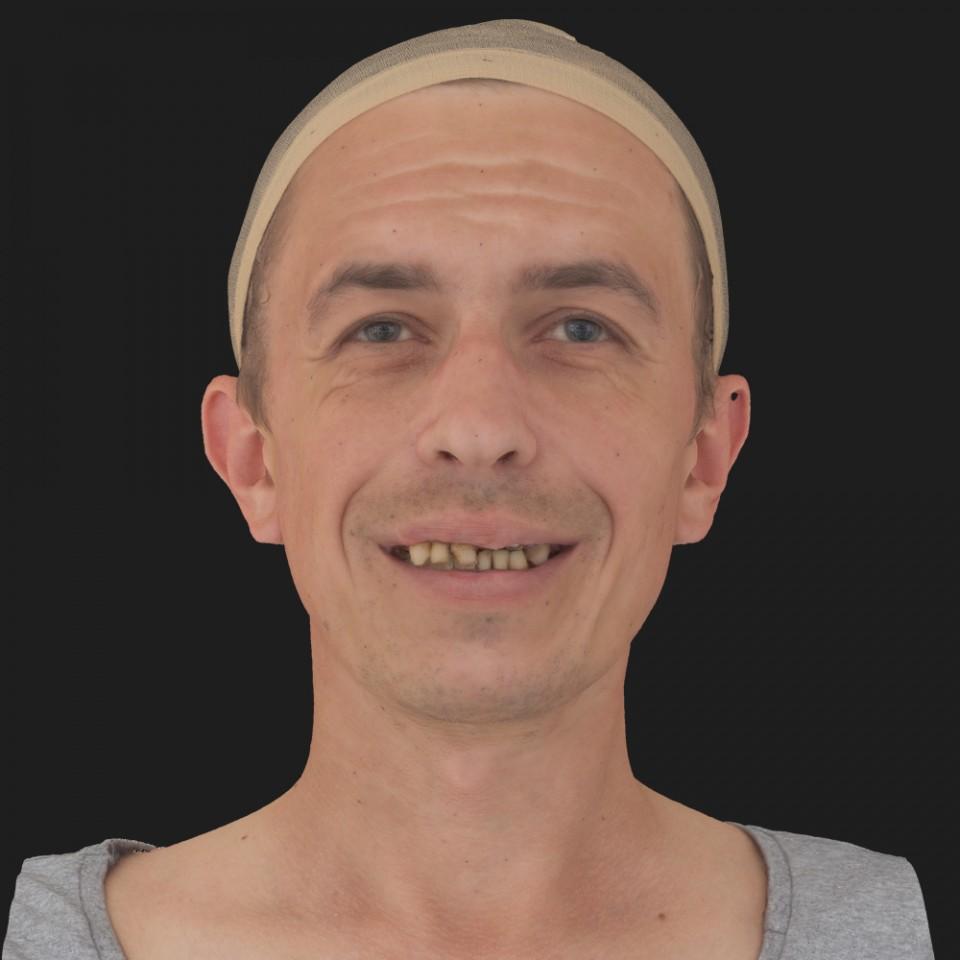 Patrick Fierro 04 Smile-Mouth Open