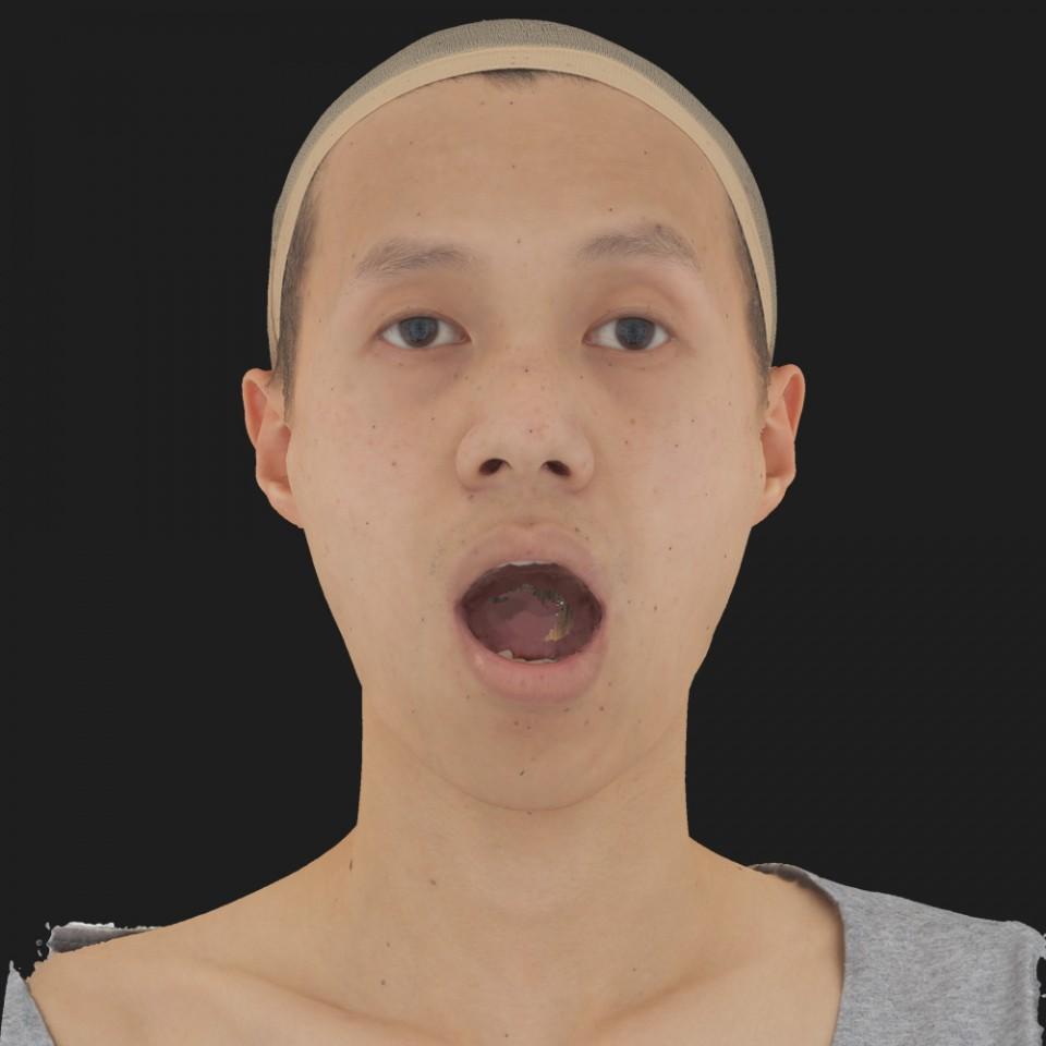 Patrick Shong 05 Jaw Open