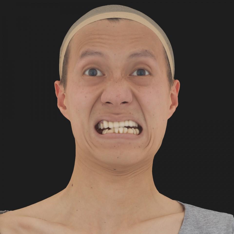 Patrick Shong 20 Rage