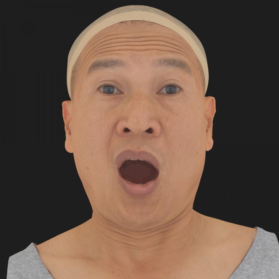 Wilson Matsui 17 Surprise